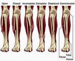 Cara Cepat Mengobati Patah Tulang