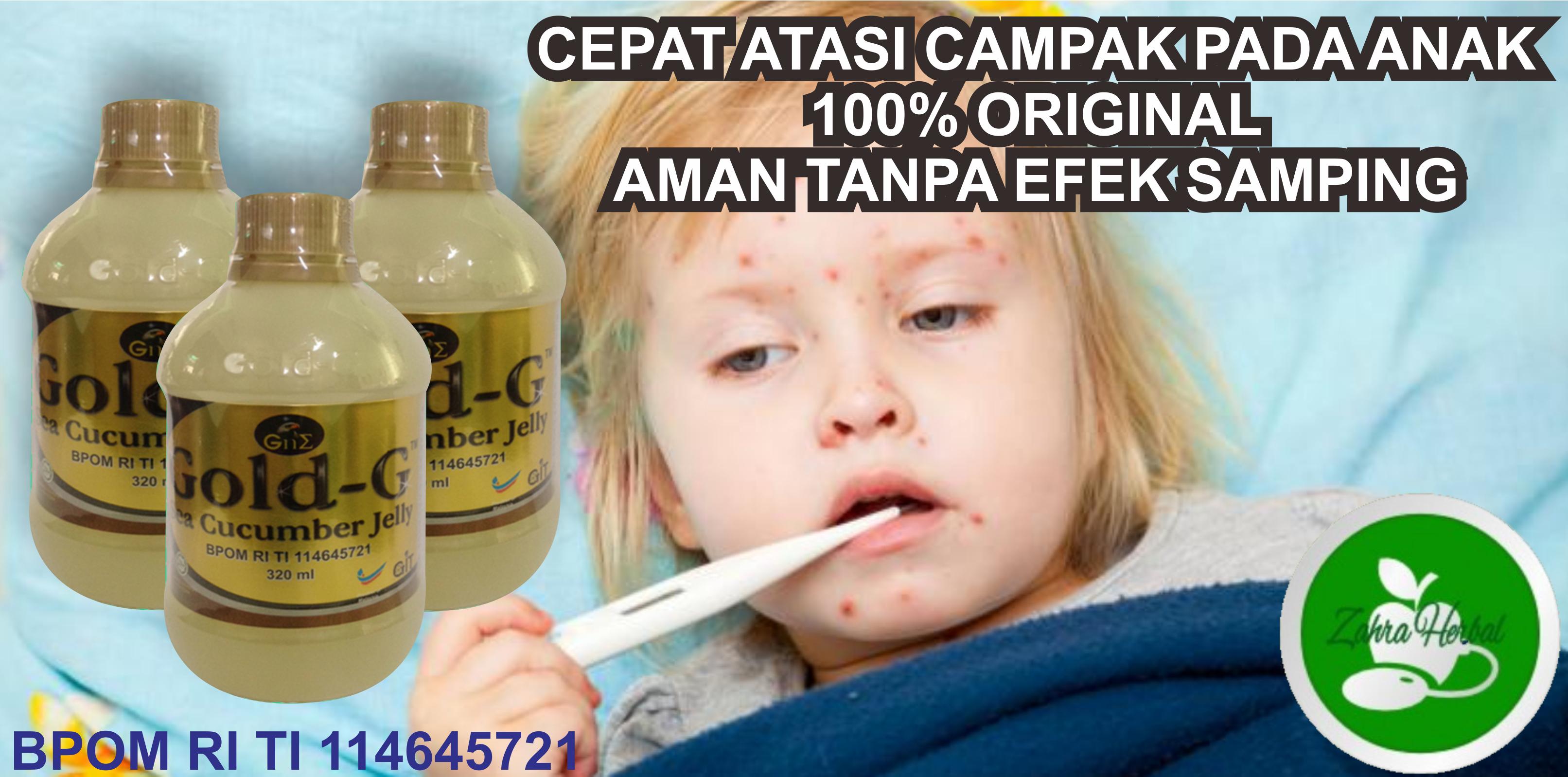 Obat Herbal Alami Terbaik Campak Pada Anak